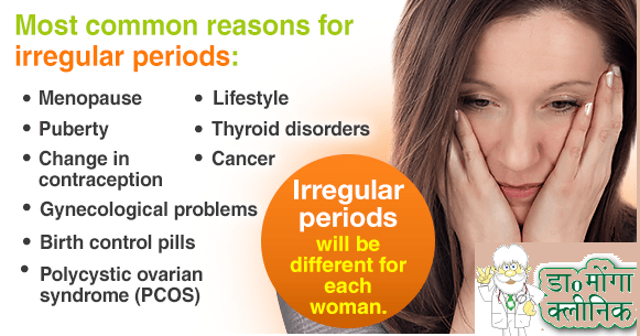Irregular Periods Treatment in Delhi by Best Female Gynecologist