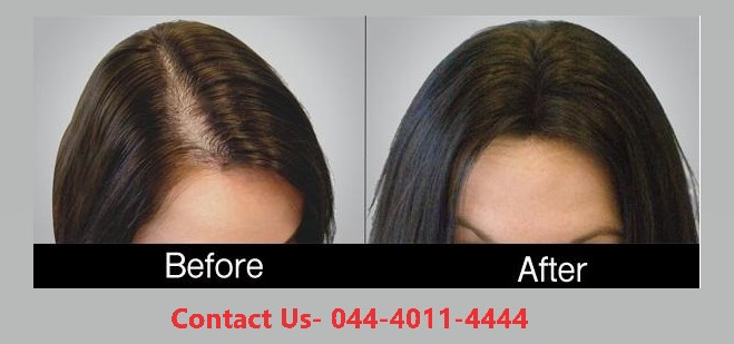 prp hair treatment in Defence Colony Road, St.Thomas Mount | 044-4011-4444