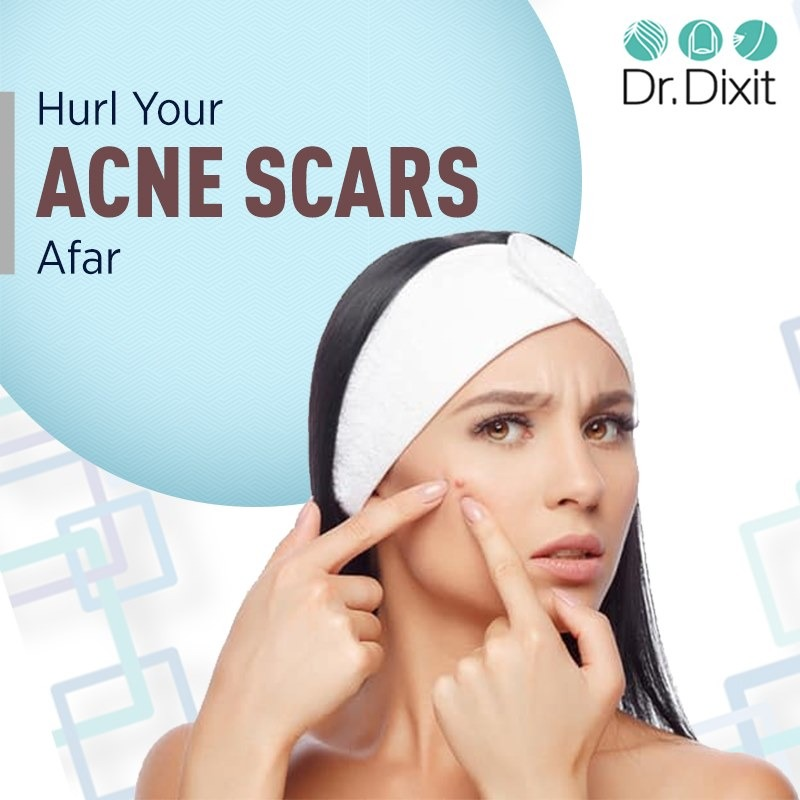 Acne Scar Treatment in Bangalore in  listed under Services - Healthcare / Fitness