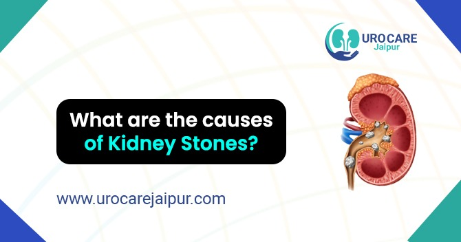 Book an appointment with Urologist in Jaipur for Laparoscopy Surgery. in  listed under Services - Doctors